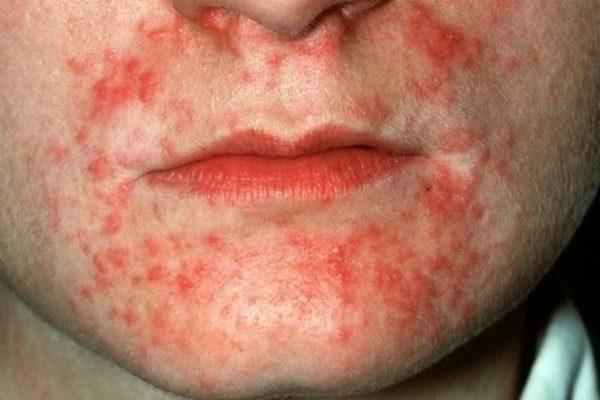 perioralni dermatitis kod djece