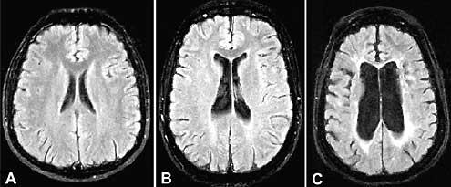 atrofija mozga simptomi