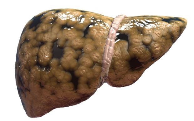 steatoza jetre